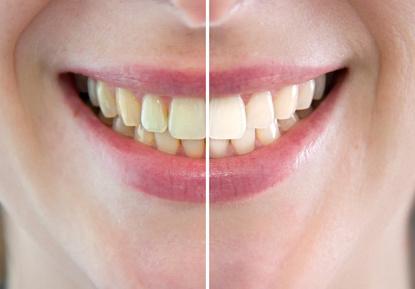 Sbiancamento dentale marcallo con casone
