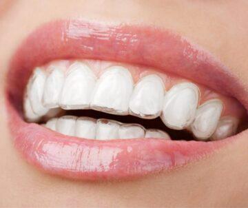 2021-04-Dental-Arca-Ortodonzia-Invisibile-Mascherine-Trasparenti-Smile-Concept